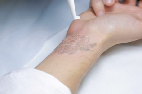 eliminacion de tatuajes en barcelona (1)