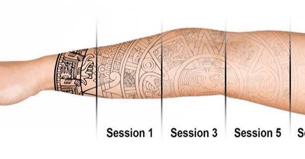 eliminacion de tatuajes en barcelona (3)